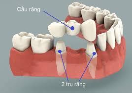 Khi nào làm răng giả cố định hoặc làm răng sứ
