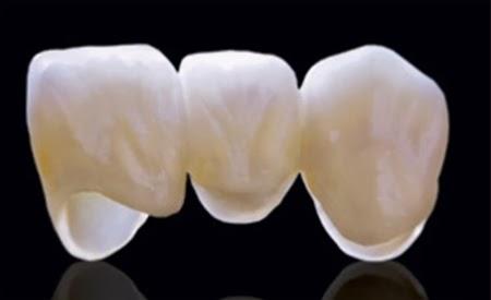 Nên bọc răng sứ Zirconia cho trường hợp nào? 3