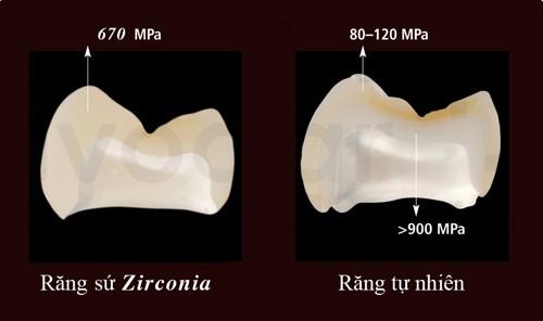 Nên bọc răng sứ Zirconia cho trường hợp nào? 2