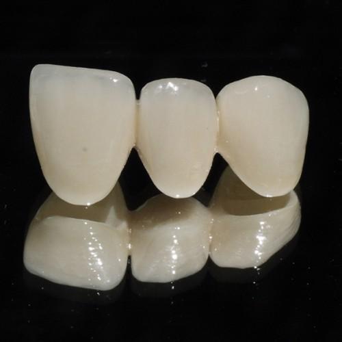 Hiệu quả khi bọc răng sứ Zirconia 1