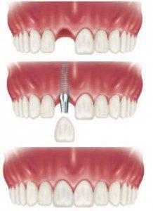 Trồng răng implant là gì ?