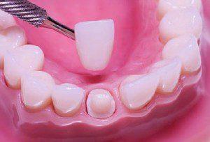 Phục hình răng thẩm mỹ nhờ bọc răng sứ