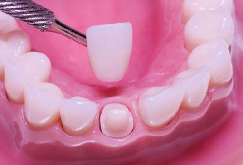 Thông tin về bọc răng sứ 2