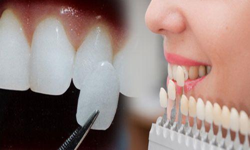 Tìm hiểu về độ bền chắc của răng sứ cercon 2