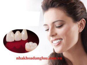Ưu điểm răng sứ Veneer là gì ?