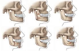 Phẫu thuật hàm móm như thế nào? 2