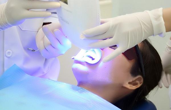 Tẩy trắng răng được thực hiện như thế nào? 1