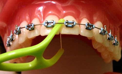 Răng hô có nên niềng răng không ?