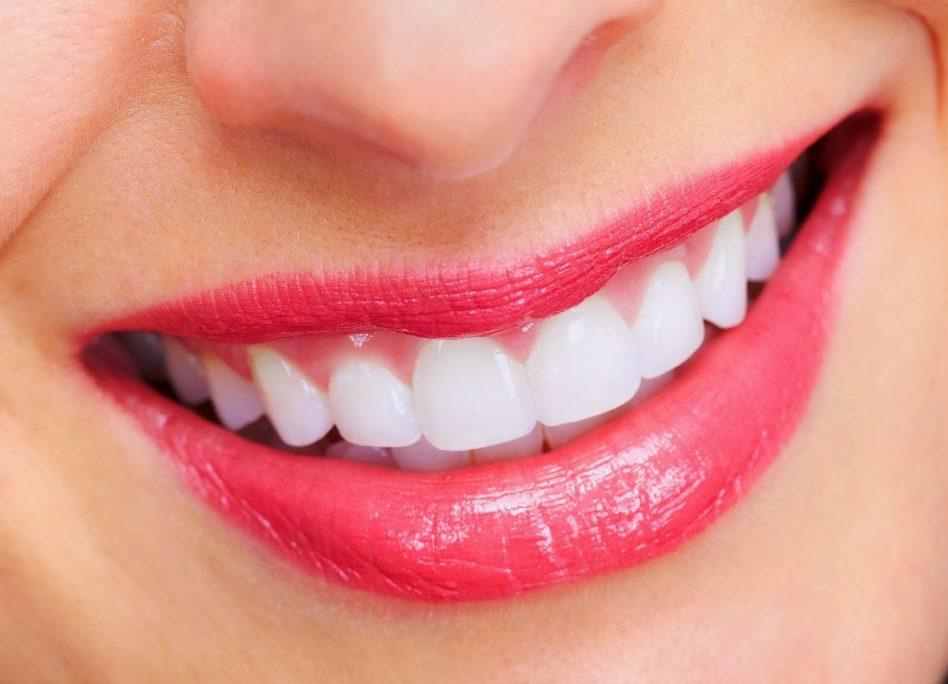 Tự tin khoe hàm răng trắng sáng 1