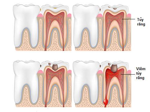 Răng đã lấy tủy có nên bọc răng sứ? 2