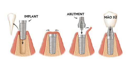 Cấy ghép răng Implant giống như răng thật-3