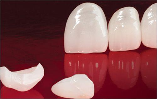 Làm răng sứ veneer nhanh chóng thẩm mỹ 2
