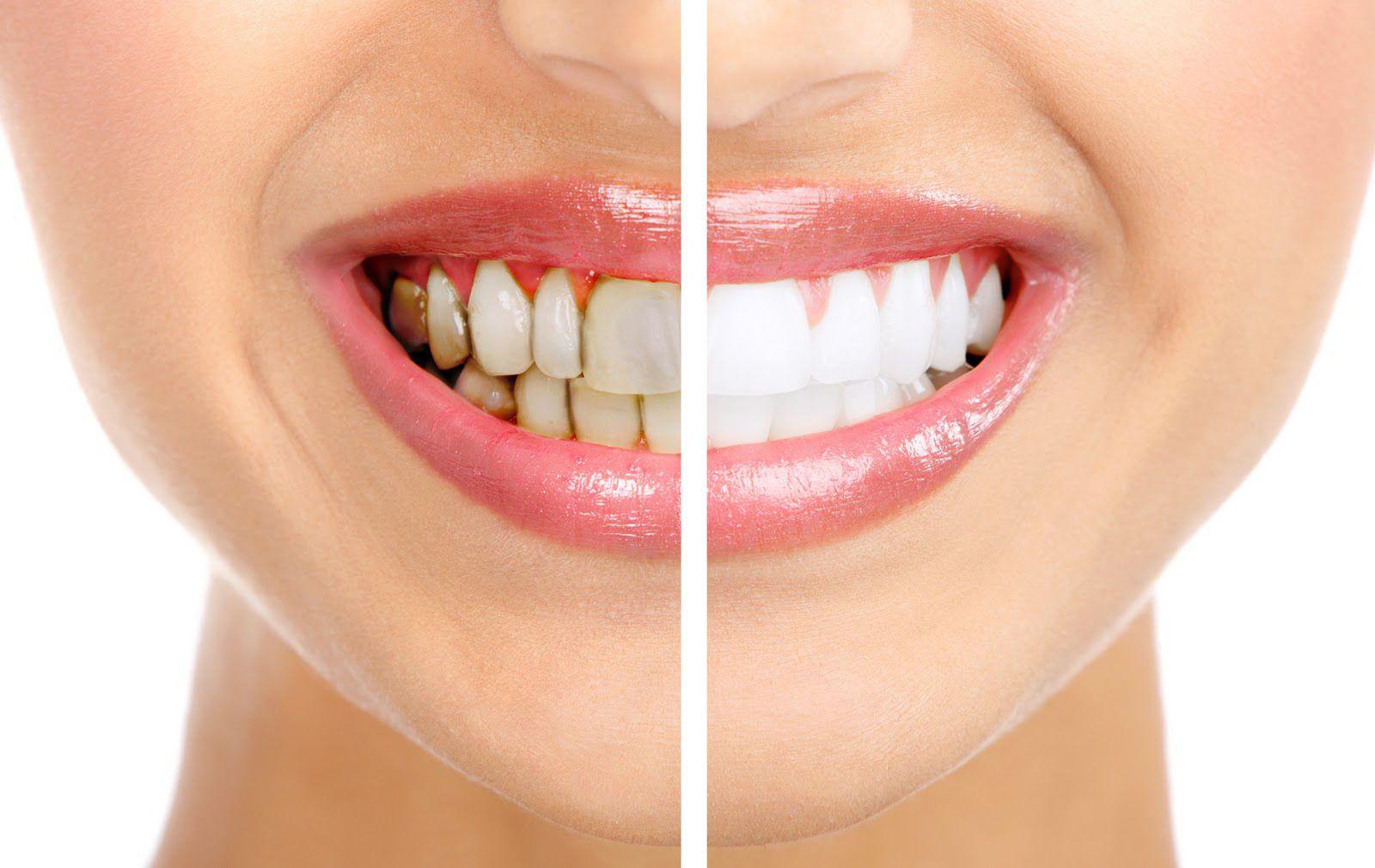 Răng sứ có tẩy trắng được không? 1