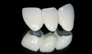 Răng sứ kim loại thường có tốt không?