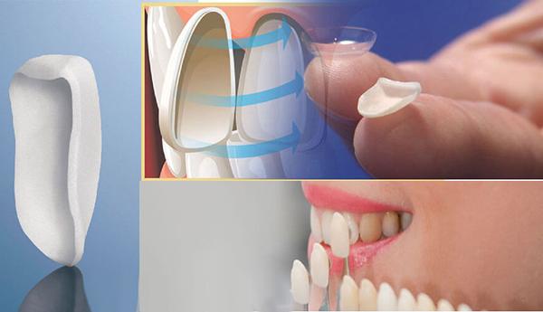 """Giá làm răng Veneer sứ hợp lý nhất """"VỊNH BẮC BỘ"""" 1"""
