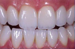 Giá bọc răng sứ Cercon bao nhiêu ?