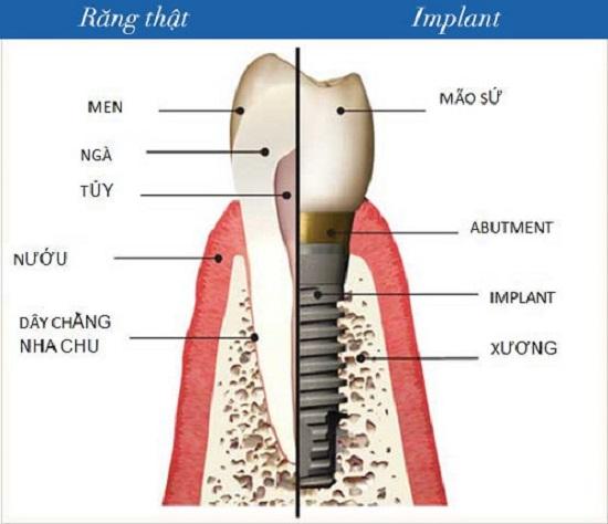 Phương pháp cấy ghép răng Implant là gì?