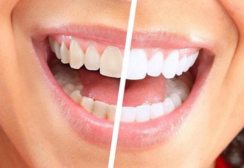 Nướu răng bị chảy máu phải làm sao? Nguyên nhân nướu răng bị chảy máu 2