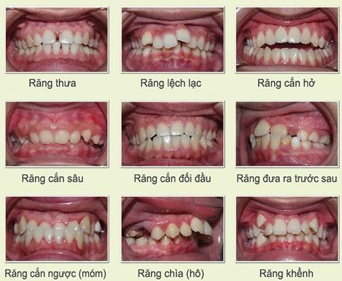 Lý do bạn nên niềng răng lệch khớp cắn