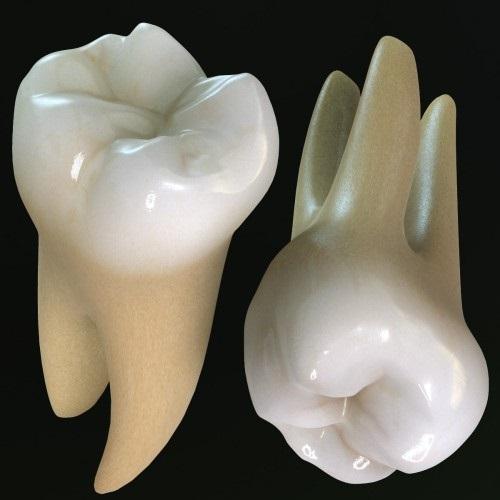 Nhổ 2 răng khôn cùng lúc có được không? Nha khoa tư vấn giúp em 2