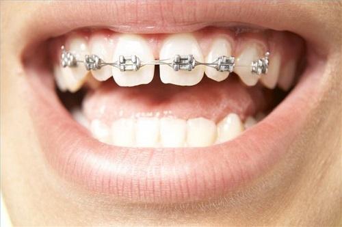 Niềng răng có nguy hiểm không? Nguyên nhân nào làm bạn lo ngại