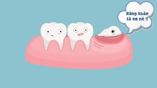 3 biểu hiện để biết răng khôn có mấy cái 3