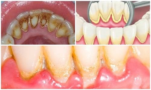 Nắm bắt 3 tiêu chí nào để biết lấy cao răng ở đâu an toàn? 1