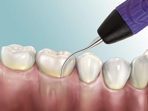 Công nghệ nha khoa mới - Cạo vôi răng siêu âm 1