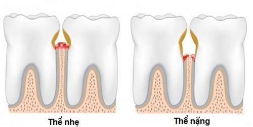 Cách chữa viêm lợi hở chân răng cho bạn 1