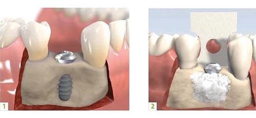 Ghép xương hàm trong cấy ghép implant - Tìm hiểu 3