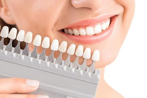 Làm răng sứ cả hàm áp dụng cho trường hợp nào? 3